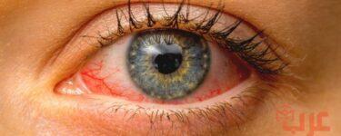 مرض العين في المنام