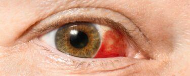 احمرار العين في المنام
