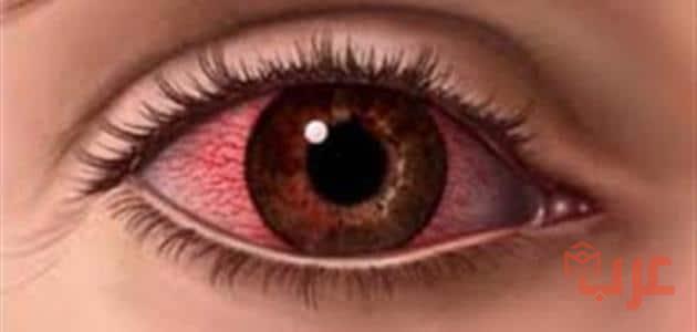 https://www.arab-box.com/the-affected-eye-in-a-dream/