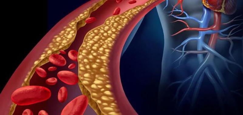 علاج الكولسترول مجرب وكيف أنزل الكولسترول بسرعة