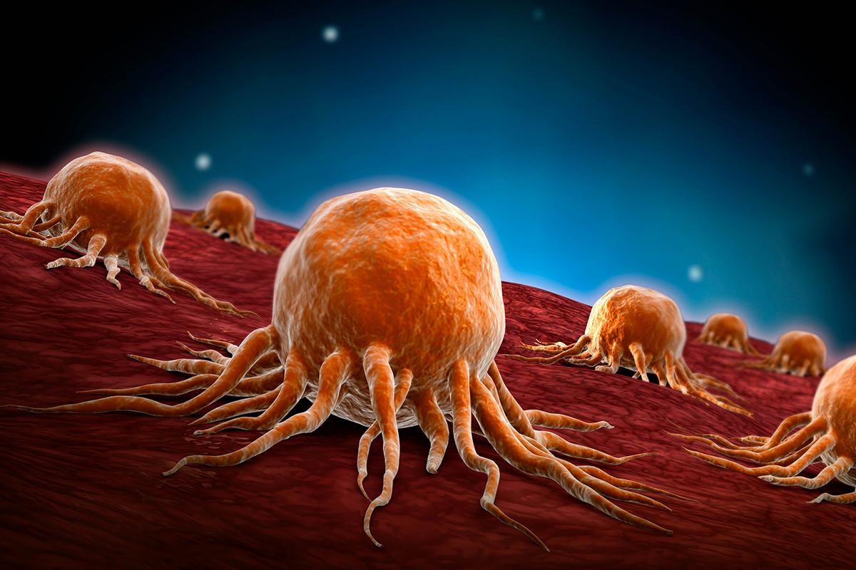 تفسير حلم الإصابة بالسرطان