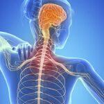 ما هو مرض التصلب اللويحي وأعراضه وعلاجه