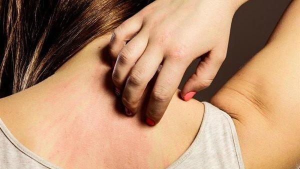 علاج الحساسية الجلدية مشروبات لعلاج الحساسية الجلدية